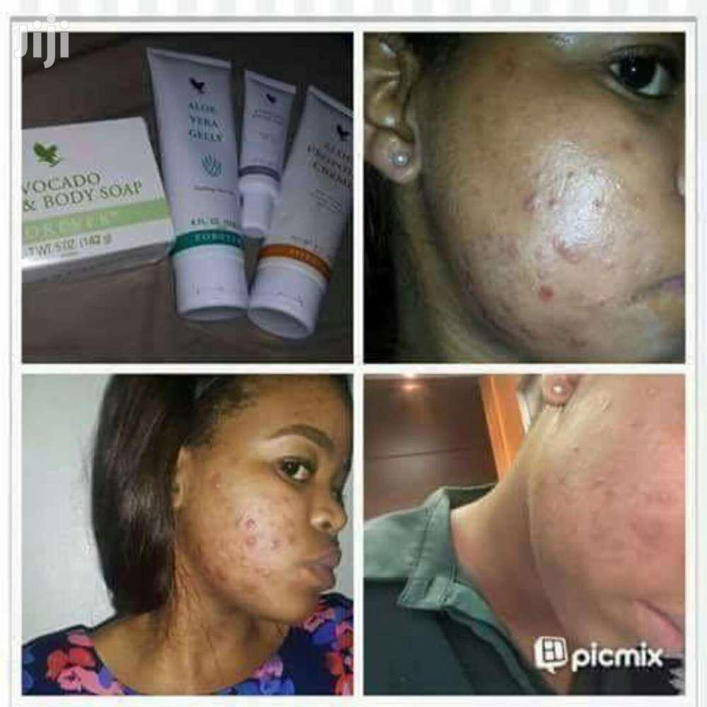 Archive: Pimples Package