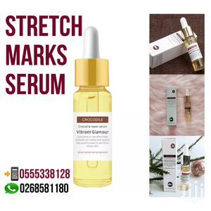 Stretch Marks Remover | Skin Care for sale in Greater Accra, Achimota