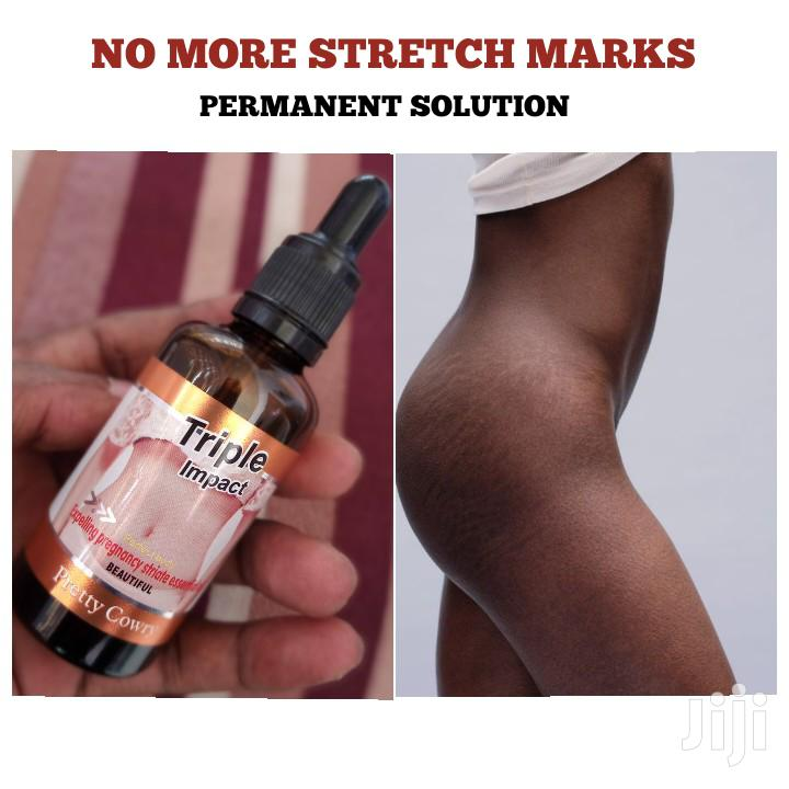 Natural Stretch Marks Product