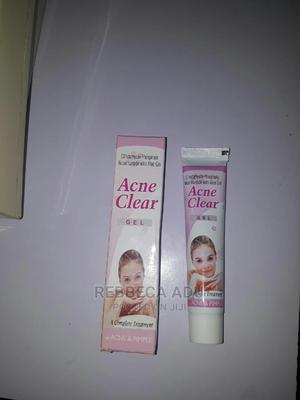 Acne Clear Gel | Skin Care for sale in Greater Accra, Achimota