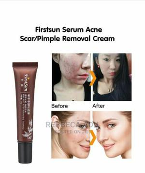 Pimples Removal Cream | Skin Care for sale in Greater Accra, Achimota