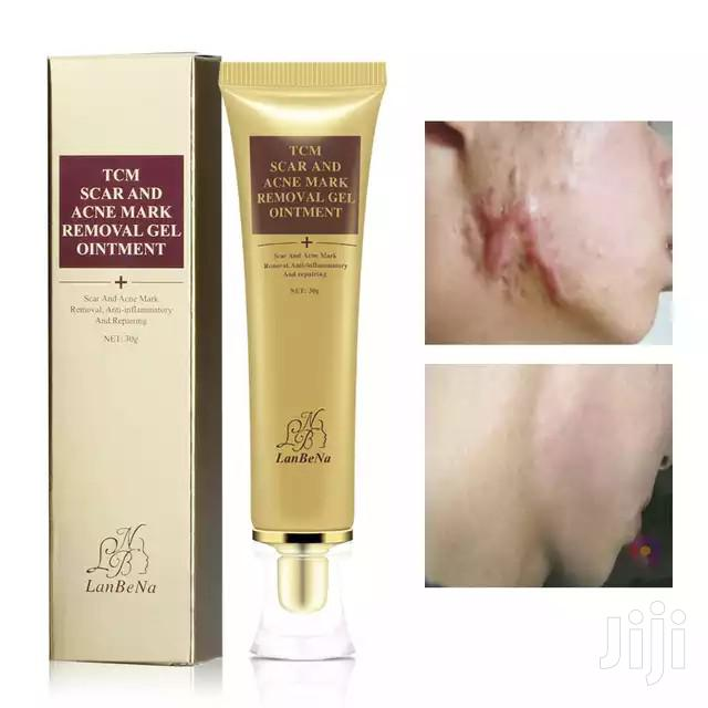 TCM Scar And Acne Mark Removal Gel