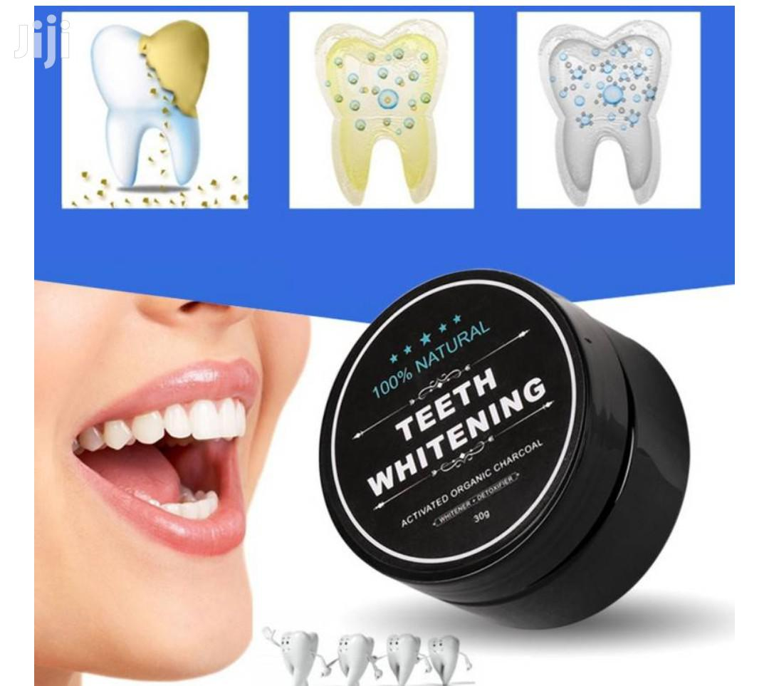 Archive: Teeth Whitening/Activated Charcoal