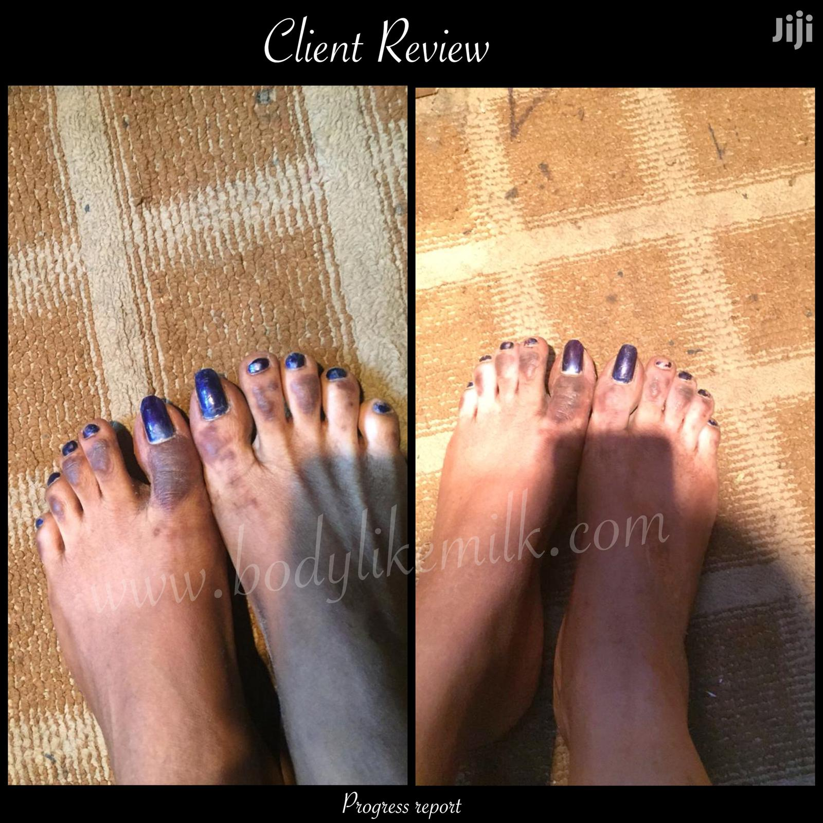 Gold Peeling Oil Knuckle Feet Hands Legs | Skin Care for sale in Accra Metropolitan, Greater Accra, Ghana