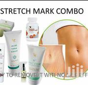 Have a Very Good Skin .No Stretch Mark Forever | Skin Care for sale in Greater Accra, Accra new Town