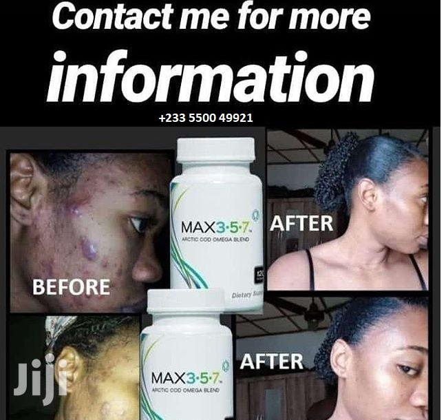 Try Max 3.5.7 (Clear All Stretch Marks, Acne and Pimples) | Skin Care for sale in Dansoman, Greater Accra, Ghana
