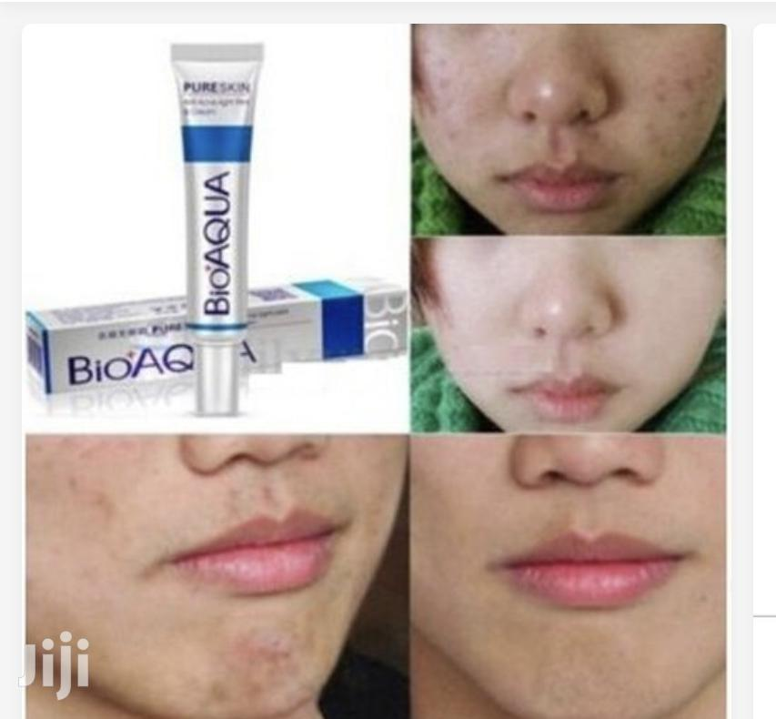 Bioaqua- Acne, Pimples and Spot Treatment Herbal Cream | Skin Care for sale in East Legon, Greater Accra, Ghana