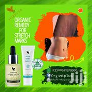Stretch Marks Organic Products | Skin Care for sale in Greater Accra, Achimota