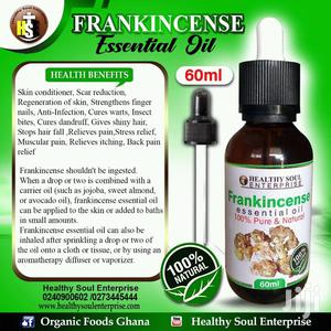 Organic Cure for Stretch Marks | Skin Care for sale in Ashanti, Bosomtwe