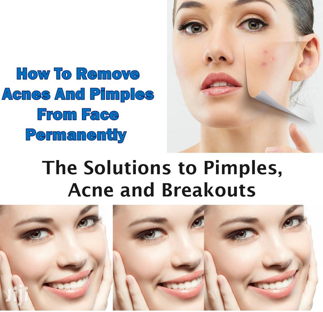 Remove Acnes And Pimples From Face Permanently