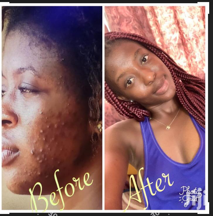 357 Skin Care Product | Skin Care for sale in Lartebiokorshie, Greater Accra, Ghana