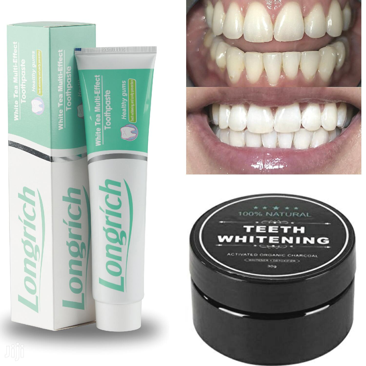 Activated Charcoal Teeth Whitening and Flouride-Free Toothpaste Combo