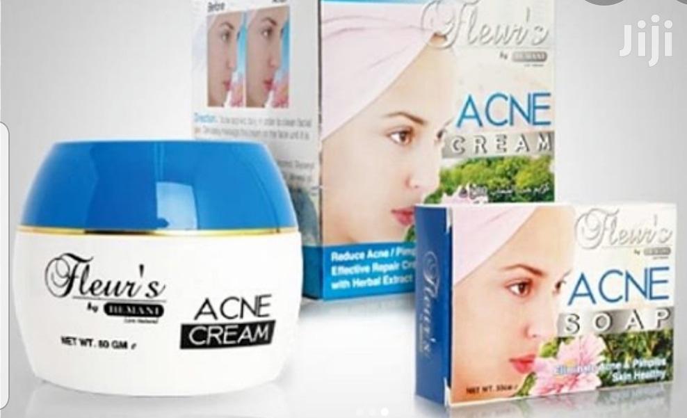 Hemani Fleur's Acne Cream + Soap