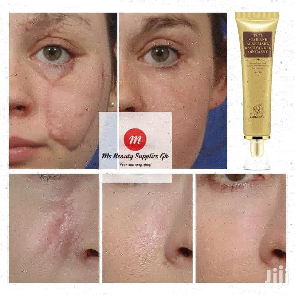 Scar, Acne, Stretch And Spots Removal Cream | Skin Care for sale in Accra Metropolitan, Greater Accra, Ghana