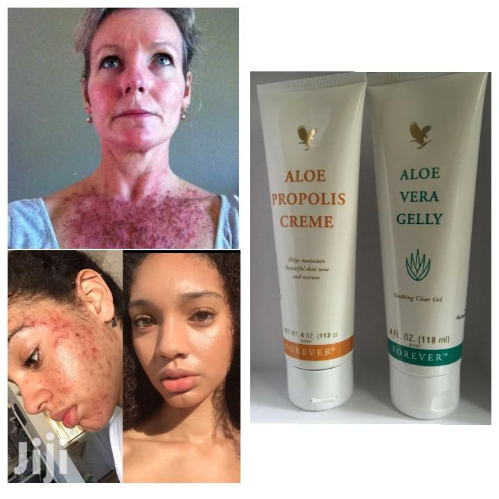Best Products for Ance, Excema, Poriasis, Pimples, Darkspots | Skin Care for sale in Airport Residential Area, Greater Accra, Ghana