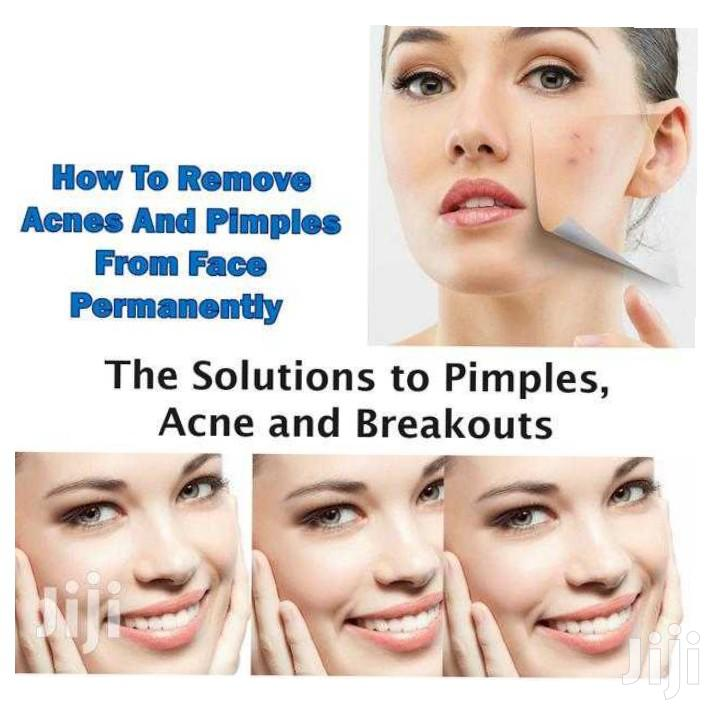 Archive: Remove Pimples and Ance From Face Permanently