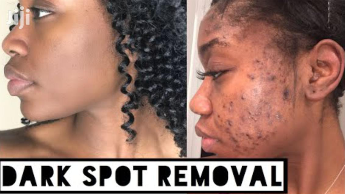 Strong Pimples, Acne And Dark Spots Removal Soap | Skin Care for sale in Accra Metropolitan, Greater Accra, Ghana