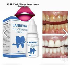 Lanbena Teeth Whitening | Bath & Body for sale in Greater Accra, Achimota