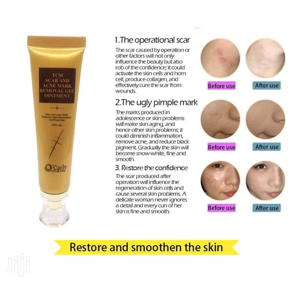 TCM Scar, Stretch Marks, Acne Mark Removal Gel Ointment | Skin Care for sale in Accra Metropolitan, Greater Accra, Ghana