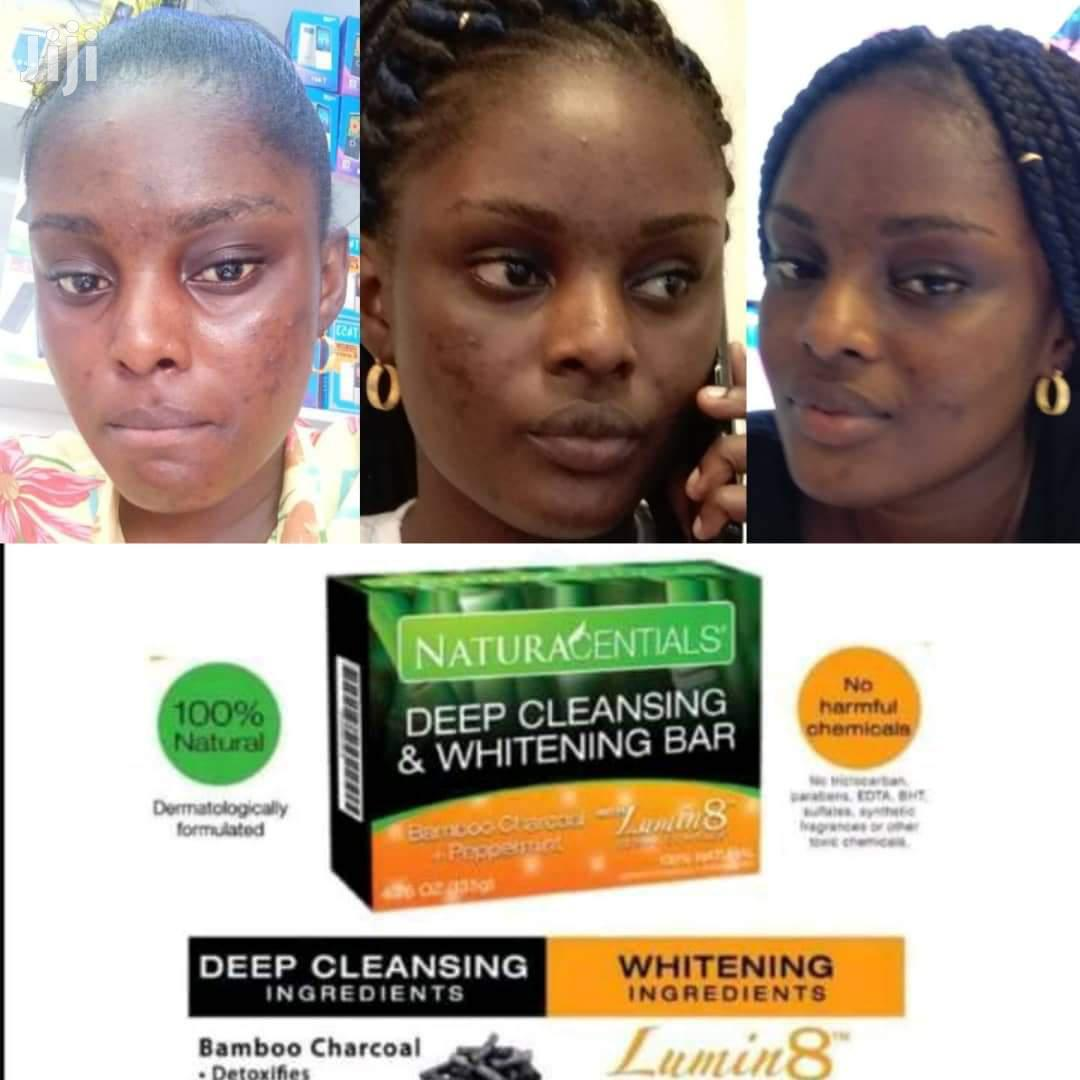 Pimples and Dark Spots Removal