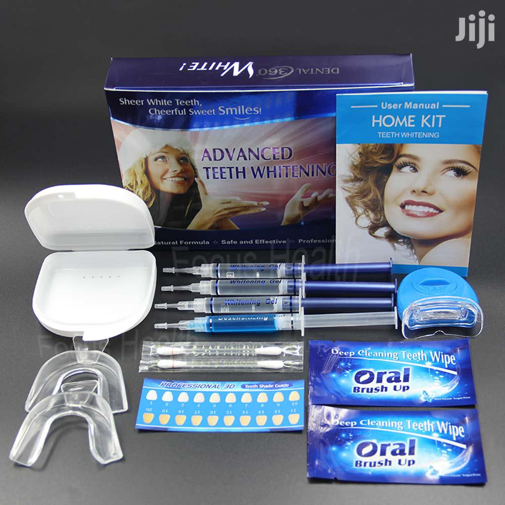 Advanced Teeth Whitening System Kit
