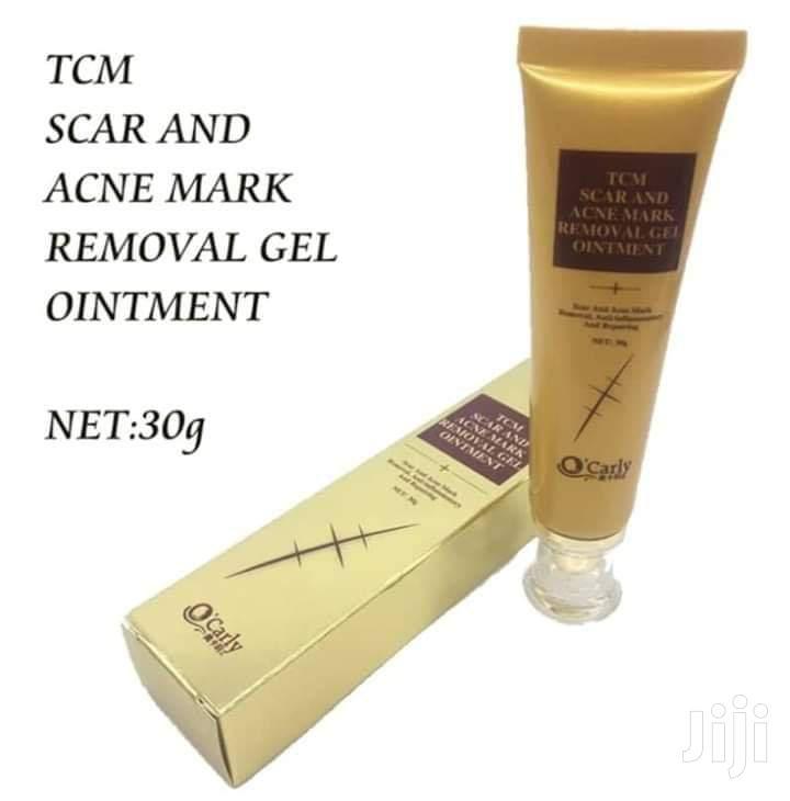 TCM Scar, Stretch Marks, Acne Mark Removal Gel Ointment