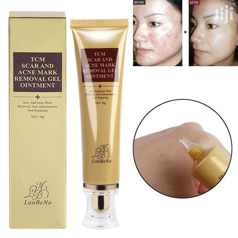 Lanbena TCM Scar, Acne, Stretch Marks, Spots Removal Gel   Skin Care for sale in Teshie-Nungua Estates, Greater Accra, Ghana