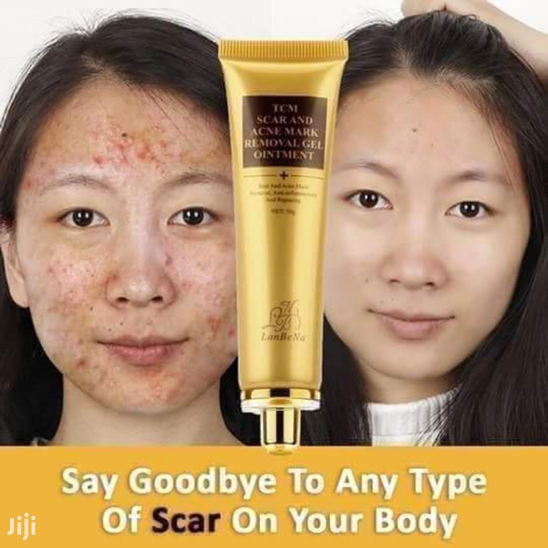 Lanbena TCM Scar, Acne, Stretch Marks, Spots Removal Gel