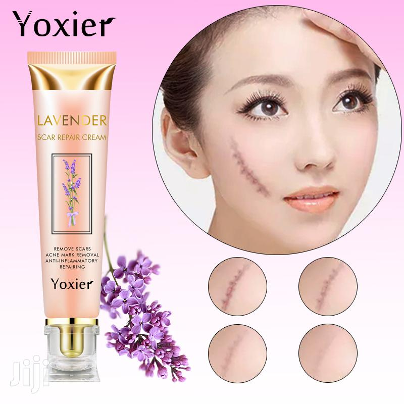 Yoxier Acne Scar Stretch Marks Remover Cream Repair Face