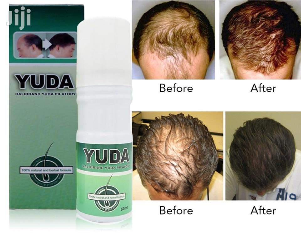 Hair And Beard Growth Spray | Hair Beauty for sale in Kumasi Metropolitan, Ashanti, Ghana