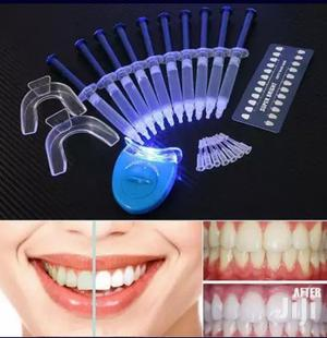 Advanced Teeth Whitening Kit With 10 Gels | Tools & Accessories for sale in Greater Accra, Adenta